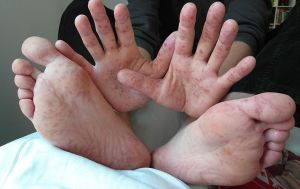 640px-hand_foot_mouth_disease_adult-cc-klatschmohnacker-wiki