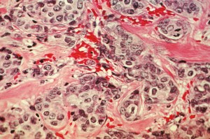 breastcancercells